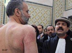 Verletzter tunesischer Anwalt Abdraouf Ayadi; Foto: AP