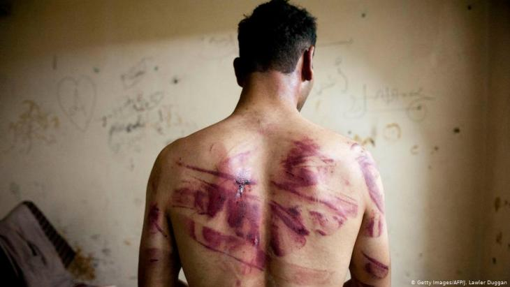 Syrisches Folteropfer; Foto: Getty Images/AFP/J. Lawler Duggan