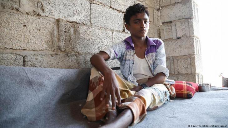 Save the Children Pressebild   Jemen-Krieg; Foto:Save the Children/Sami Jassar Dieser Junge ist bei zwei Luftangriffen schwer verletzt worden