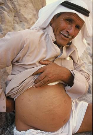 """Ein älterer Beduine zeigt auf seine sogenannten """"kay bil nar""""-Narben"""