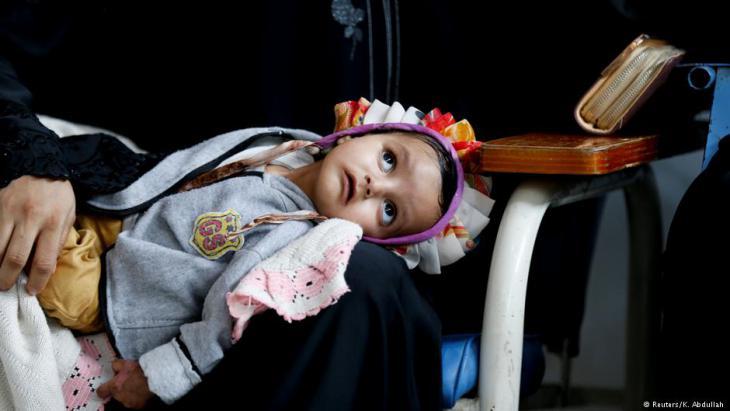 Kind im  im Krebszentrum in Sanaa; Foto: Reuters/K. Abdullah