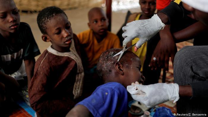 Der Arzt El Hadj Diallou, ein ehemaliger Talibé, behandelt einen Koranschüler, der sich mit Krätze angesteckt hat; Foto: Reuters