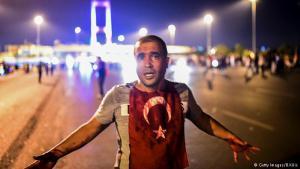 Ein blutüberströmter Einwohner Istanbuls steht in der Nähe der Bosporus-Brücke. Nachdem das Militär in der Nacht zum Samstag die Brücke gesperrt hatte, kam es zu Zusammenstößen zwischen Bürgern und Armee. Bei den Gefechten während des Putschversuches sind nach Regierungsangaben landesweit mehr als 260 Menschen getötet worden.