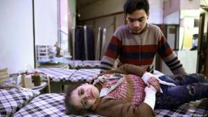 Ein verletztes Mädchen wartet auf medizinische Behandlung in der syrischen Stadt Duma; Foto: AFP/Getty Images